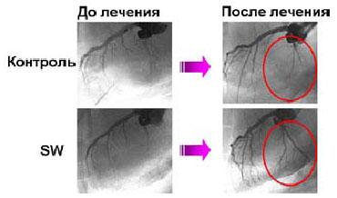 Результаты коронарографии до и после воздействия ударных волн. SW — экспериментальная группа